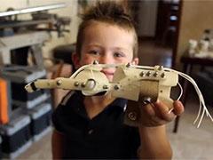 Протез руки напечатан на 3D принтере